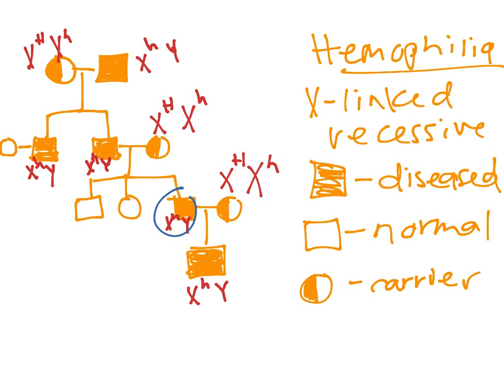 Showme pedigree chart for colour blindness most viewed thumbnail hemophilia pedigree geenschuldenfo Images