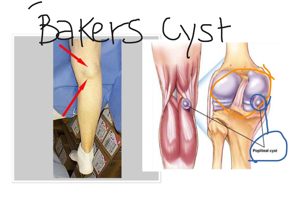 Bakers Cyst Science Showme