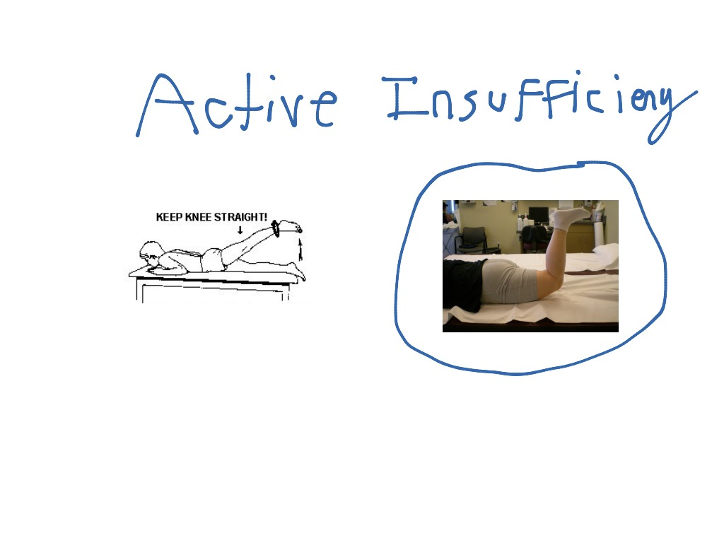 Active & Passive Insufficiency   physical therapy ...