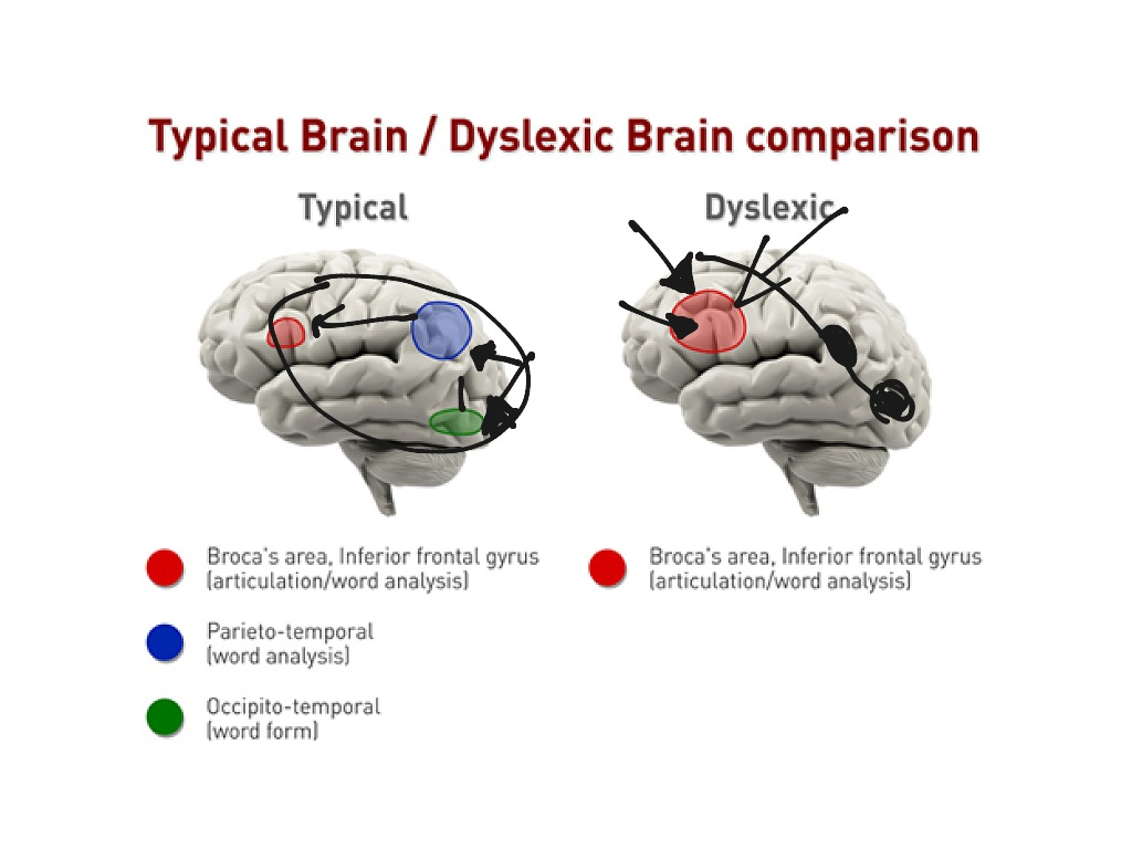 Dyslexia And Brain Structure